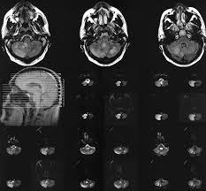 Brainstem Mass Management Of Acute Cerebellar Stroke Cerebrovascular Disease
