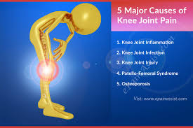 best medicine for inflammation 5 major causes of knee joint pain inflammation infection injury