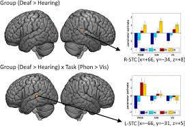 how auditory experience differentially influences the function of