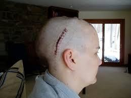 hairstyles brain surgery 213 best pseudotumor cerebri iih idopathic intracranial