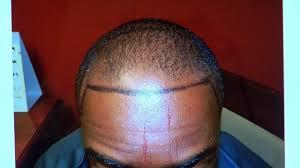 hairline restoration for black men black man dense hairline hair loss transplant restoration surgery
