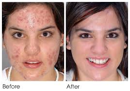 where to buy neutrogena light therapy acne mask neutrogena light therapy acne mask before and after pictures