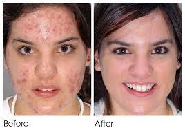 light therapy for acne scars neutrogena light mask reviews light light info