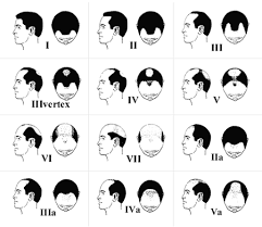 boy hair cut length guide collections of mens haircut chart cute hairstyles for girls