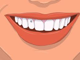 Home Design Story More Gems by How To Apply Tooth Gems 14 Steps With Pictures Wikihow