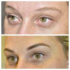 cosmetic tattoo clinic cosmetic tattoo permanent makeup specialist