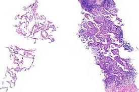 lepidic pattern meaning adenocarcinoma of the lung libre pathology