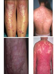 sun ls for psoriasis for sale psoriasis epidemiology clinical and pdf download available