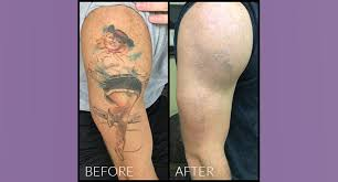 tattoo removal does it work laser tattoo removal evansville in 812 492 7280 free consultation