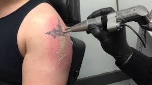 tattoo removal shoulder laser tattoo removal everything you need to know