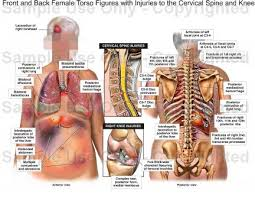 Back Knee Anatomy Front And Back Female Torso Figures With Injuries To The Cervical
