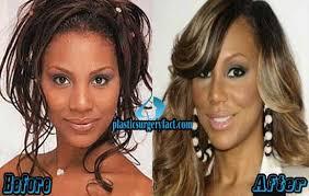 tamar braxton nose job before after tamar braxton nose job before and after http plasticsurgeryfact