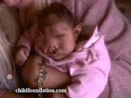 samoan baby miracle tina defies odds of survival 2008 seo website