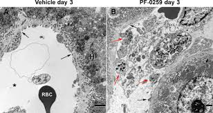 liver microvascular injury and thrombocytopenia of antibody