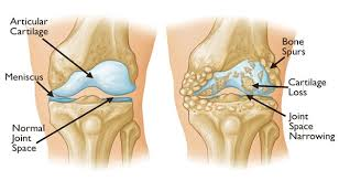 Back Knee Anatomy Get Rid Of Joint Back And Knee Pain With This Superfood In Less