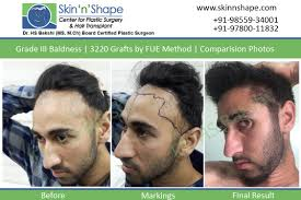 hair loss treatment for men in chandigarh india