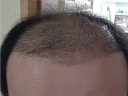 hair transplant month by month pictures hair transplant turkey before and after photos and descriptions