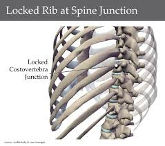 mal aligned rib cage a study physiotherapy articles