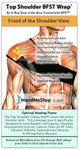 Anatomy Of Shoulder Muscles And Tendons Aidmyrotatorcuff Com Shoulder Tendon And Muscle Rupture