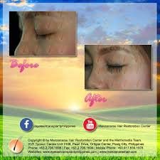 hair transplant in the philppines cost before and after eyelash hair transplant manila philippines