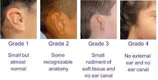 microtia ear surgery and bone anchored hearing devices sheryl lewin