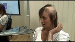What Can I Do For My Hair Loss Hair Loss From Extensions Choice Image Hair Coloring Ideas