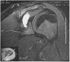 Innervation Of Infraspinatus Nerve Lesions Suprascapular Axillary Thoracic Outlet And