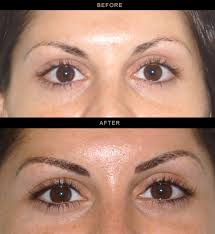 permanent eyeliner in los gatos bay area california