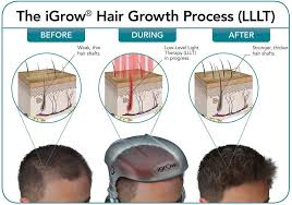 amazon com igrow laser hair growth helmet restoration u0026 regrowth