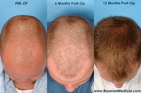 hair plugs for men hair transplant for men and women