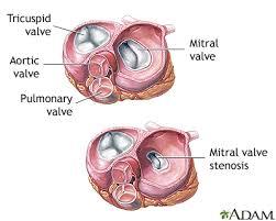 Anatomy Of Heart Valve Heart Valve Surgery Series Penn State Hershey Medical Center