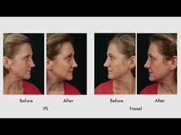 intense pulsed light review sun damage recovery part 5 review of results with ipl vs fraxel