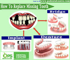 best dental insurance nc how to replace missing tooth contact us http www