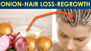 how to use onion juice to stop hair loss and promote hair regrowth