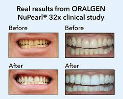 pro light dental whitening system reviews nupearl 32x advanced teeth whitening system peroxide free with