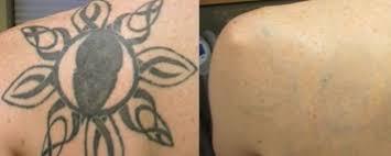 free laser tattoo removal reading berkshire info