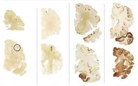 What Is Dead Tissue Called What Is Cte Chronic Traumatic Encephalopathy