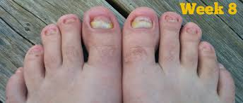 tea tree oil for nail fungus this will definitely get rid of