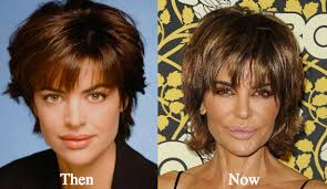 how does lisa rinna cut her hair lisa rinna plastic surgery before and after photos latest