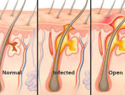 pubic hair on thigh infected ingrown hair causes cyst follicle symptoms treat