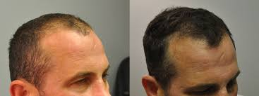 how thick is 1000 hair graft 1000 fue hair transplant 4 5 month follow up fallon hair restoration