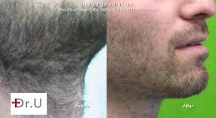 can you color hair after brain surgery to beard hair transplant for a better match in color and texture