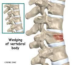 Anatomy Of Vertebral Body Kyphoplasty Orthogate