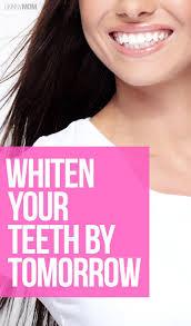 Does Laser Teeth Whitening Work Best 25 Fast Teeth Whitening Ideas On Pinterest Teeth White