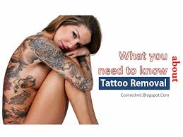 just the facts about tattoo removal cosmetic medicine md