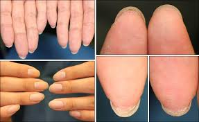 nail bed pain fingers showing adherence of the distal portion of the nail bed to