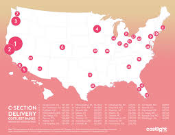 costs of delivering babies vary widely in u s california cities