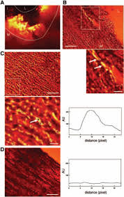 visualization of vascular inflammation in the atherosclerotic