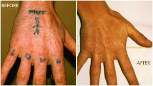 laser tattoo removal best way to get rid of your unwanted tattoo