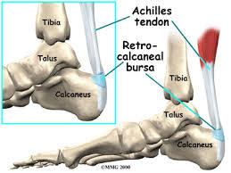Calcaneus Anatomy Haglund U0027s Deformity Eorthopod Com